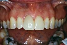 Before and After Photo's / Dental Before and After Photo's