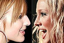Celebs with Plastic Surgery / Celebrities with Plastic Surgery