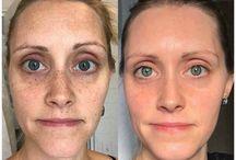Skincare: Rodan & Fields