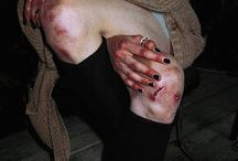 Bruises ( aes )