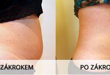 Laserová liposukce LipoDefine / Vše o nejmodernější laserové liposukci na trhu, fotografie před a po.