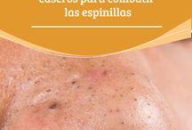 Tratamiento de acne