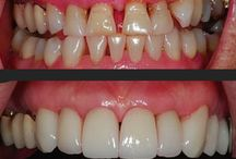 Cancun dentist before and Afters / Want to see the Transformations our patients receive here in #Cancun #Dentistrycancun #Cancundentist #Dentaldestinationscancun #Dentaris