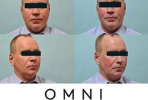 Before and Afters / Before and after photos from OMNI Aesthetic MD