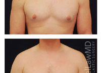 Gynecomastia Surgery Before and After / This board is dedicated to informing the public about gynecomastia surgery preformed by Dr. Michael Law. Gynecomastia surgery is a reduction for enlarged male breasts. The procedure removes excess fat and glandular tissue to restore a flatter, firmer and more masculine contour to the chest