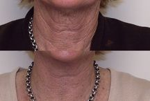 Best of  Neck and Décolletage / Anti-aging skin and beauty treatments for the neck  and chest. - Décolletage is what we call the neckline, or more specifically the area made up of the neck, chest and cleavage.