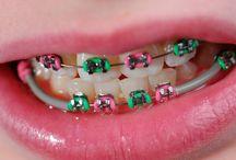 braces / by Betty Nunes