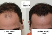 Latest Hair Transplant Surgery / Latest Hair Transplant Surgery results - Melbourne and Sydney