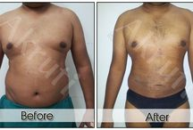Liposuction Surgery @ Akruti / Patient Name : Dhanjay  Surgery : Liposuction
