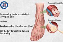 Homeopathy Treatment For Diabetic Neuropathy