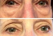 Trim Facial Wrinkles And Lift Up Flabby Facial Muscle Employing Face Reflexology Gymnastics / Facial Exercise Remedies For Age-Reversal And Winkle Reduction