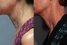 Neck Lift / Make your nek look ten years younger!