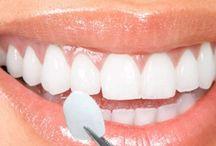 Dental Veneers Las Vegas / The custom-made veneers are made to fit your teeth making them look straighter and whiter.