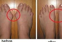 bunions with out surgery