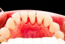 limpieza de la boca y Colon