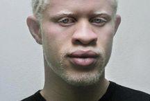 Facial types