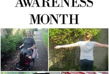 Marfan Syndrome / Blogs and articles about Marfan Syndrome.