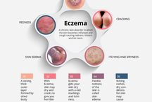 Eczema / Eczema generally refers to the chronic skin disorder or the skin condition that is mostly characterized by scaly, dry, red, itchy skin. Only the person suffering from eczema knows the pain he is actually going through.