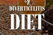 managing diverticulitis....