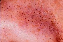 Beauty / Skincare