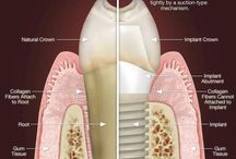 Dental implants / Dental implants