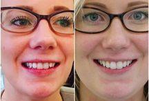 Quick Straight #Teeth