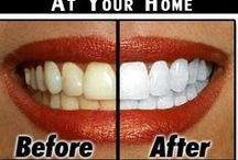 자연 치아 미백