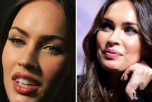 Megan Fox Before and After / Take a look at Megan Fox before and after photos and make your own opinion. Which and how many plastic surgeries have been perfomed?