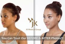 Korean Rhinoplasty / Korean Rhinoplasty (Nose Surgery) at JK Plastic Surgery