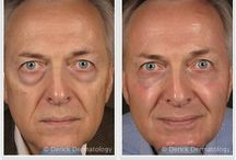 Restylane / Restylane Dermal Filler Before and After Photos. Call to schedule an appointment with one of our dermatologists in Barrington, Illinois. 847.381.8899  Restylane Effects | Restylane Product | Restylane Products | Restylane Benefits | Restylane Photographs | Restylane Pictures | Restylane Filler | Skin Filler Effects | Wrinkle Filler Effects | Anti Aging Products | Anti Aging Fillers
