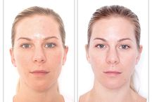 Extraordinary Skin Results / Before and After Photo of people that have used Miracle 10 Skincare. See the results: