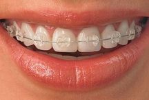 BRACE FACE / Everything you need to know about adult braces