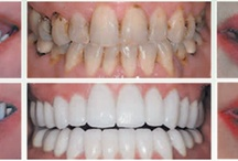 Cosmetic Dentistry Robinson IL / osmetic Dentistry is a speciality for the team at the Smile Center in Robinson IL 62454. From teeth whitening to dental crowns & dental veneers they do it all. Call (618) 544-2626 to book your Smile Makeover.
