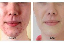 acne pro