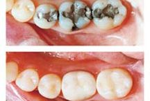 Zuby teeth