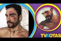 Así quedó el rostro de Gonzalo García Vivanco tras sufrir accidente en la playa