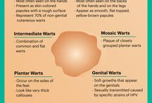 Warts how to remove
