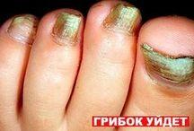 ногти Лечение