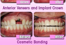 Before & After / Look at these amazing results from cosmetic dentistry!
