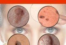 removed moles