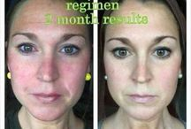 R+F BEFORE & AFTERS / by Jillian Kennedy