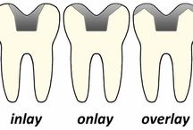 Boca Raton Dental - Same Day Crowns, Inlays, Onlays, and Veneers / Information about crowns, inlays, onlays, and veneers! Using the Cerec machine, in our Boca Raton office, Dr. Markowitz is able to provide same-day service for restorations such as crowns, inlays, onlays, and veneers.