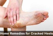 Home Remedies 'Heels'