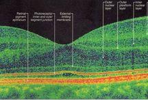 OCT Retinal Images