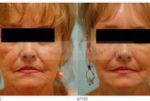 Skin Resurfacing / Skin resurfacing and fillers are two ways that Dr. Lam uses to make your skin look better.  Skin resurfacing means cleaning up the old skin by removing the damage accumulated by aging and sun exposure using peels, laser, and plasma technology.
