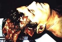 Autopsies & Embalming