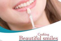 Ceramic Veneers / Explore everything about veneers treatment
