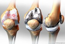 Knee Replacement / Total knee replacement surgery, or total knee arthroplasty, is one of the most common major surgeries performed in the U.S. It is done to alleviate pain caused by moderate to severe knee arthritis.