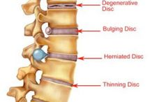 Spinal Pain Dunsborough Physiotherapy Centre