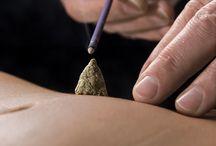 Acupuncture, Moxa, Cupping, Gua Sha, Tui Na